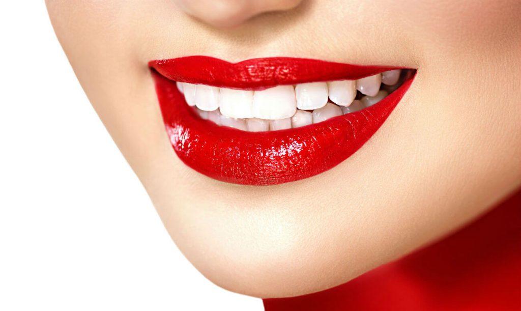 Отбеливание зубов (Киев): особенности технологии?